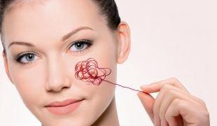 Способы лечения купероза на лице