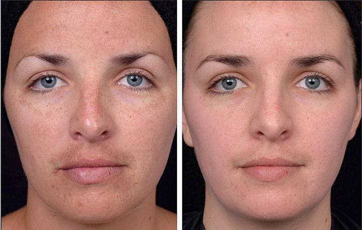 Химический пилинг - фото до и после